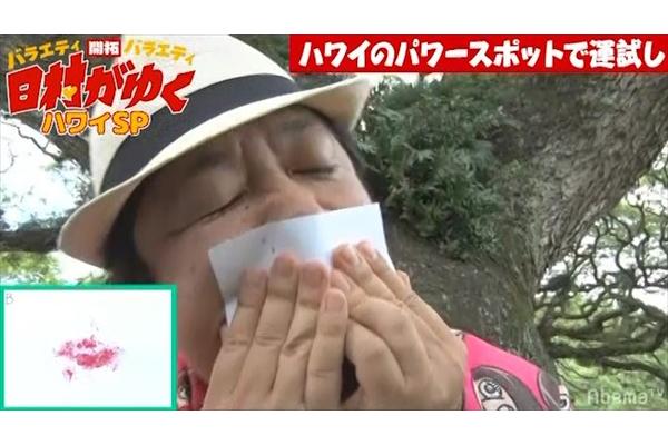 バナナマン日村勇紀、美女のキスマークのはずが…「生き物史上1番嫌なやつ」